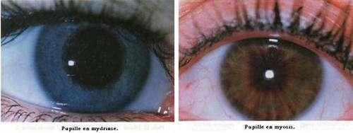 Mydriase et myosis. © Reproduction et utilisation interdites