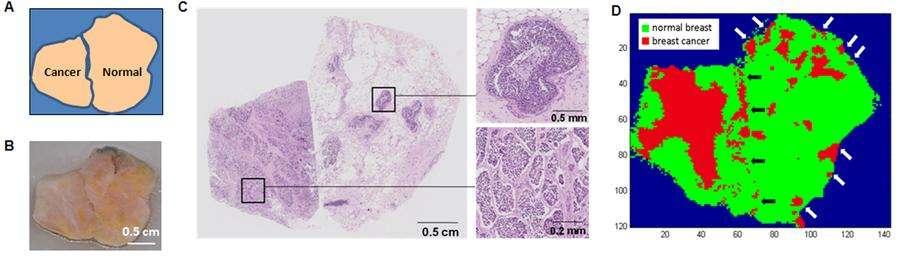En A, on peut voir une représentation schématique de la disposition des tissus. L'image C correspond à une vision histopathologique laissant apparaître des différences entre les tissus sain et cancéreux. Enfin, le D correspond à la carte obtenue grâce au scanner, avec la partie rouge signalant les régions tumorales tandis que la partie verte correspond au tissu sain. On y détecte tout de même des petits foyers cancéreux. © Yue et al., Plos One
