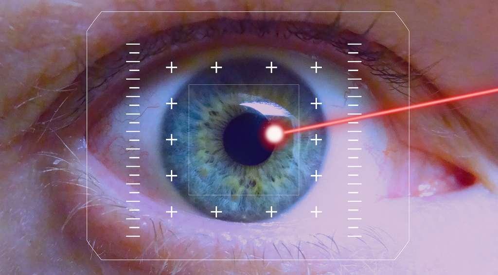 La «chirurgie moléculaire» pourrait permettre de corriger la courbure de cornées défectueuses. Une alternative aux opérations laser. Dans des expériences sur des animaux, les chercheurs ont imprimé en 3D des lentilles de contact sur lesquelles ils ont peint des électrodes. Une fois placées sur les yeux, un courant électrique a permis de ramollir temporairement la cornée pour la remodeler. © 422737, Pixabay License