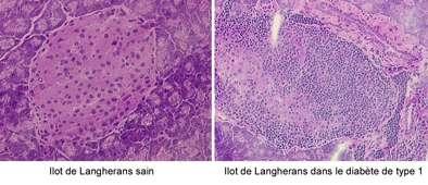 Îlot de Langherans sain (à gauche) et îlot de Langherans d'un malade du diabète de type 1 (à droite). © CNRS (Centre national de la recherche scientifique)