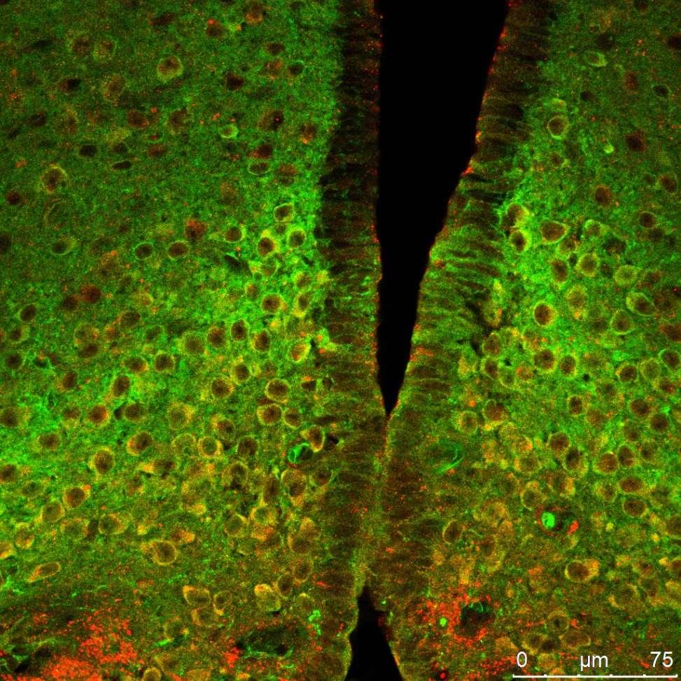 Neurones de l'hypothalamus, au cœur du cerveau