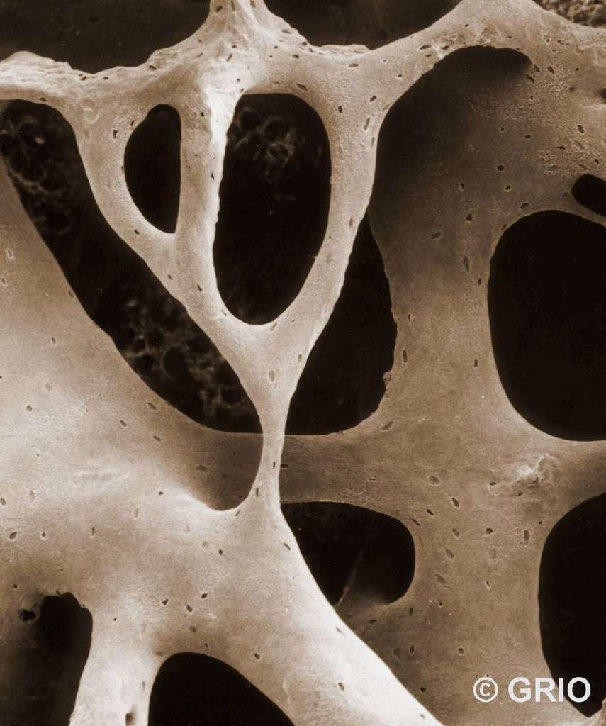 Trame osseuse (microscopie électronique à balayage). © Groupe de recherche et d'information sur les ostéoporoses, reproduction autorisée par le GRIO, EDP Sciences, tous droits réservés