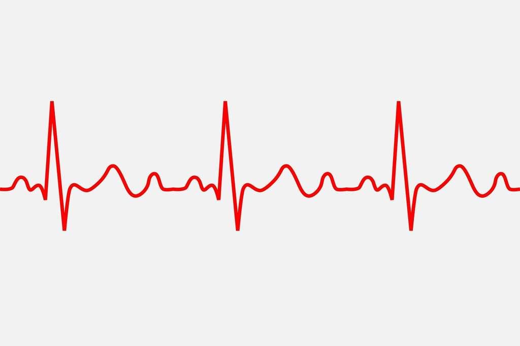 Lorsque le rythme cardiaque se dérègle, il s'agit d'une arythmie cardiaque. © Maxim Grebeshkov, Fotolia