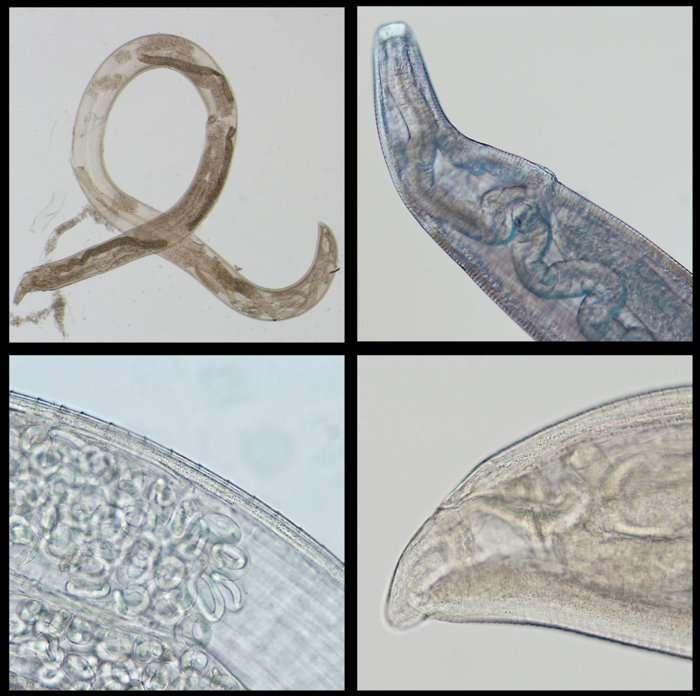 Le ver T.gulosa (en haut à gauche) et les ovaires contenant les œufs que la femelle peut pondre dans l'œil. À droite, les cavités anales et buccales. © Richard S. Bradbury et al., Clinical Infectious Diseases, 2019