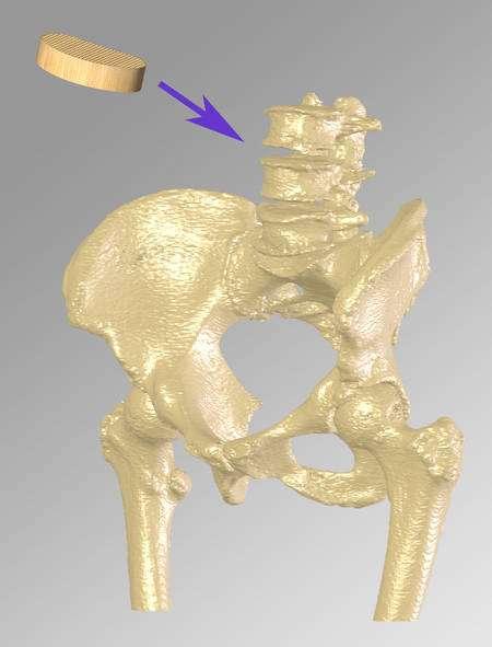 L'implant pourrait être utilisé pour des lésions au niveau de la colonne vertébrale. Crédit : University of Warwick