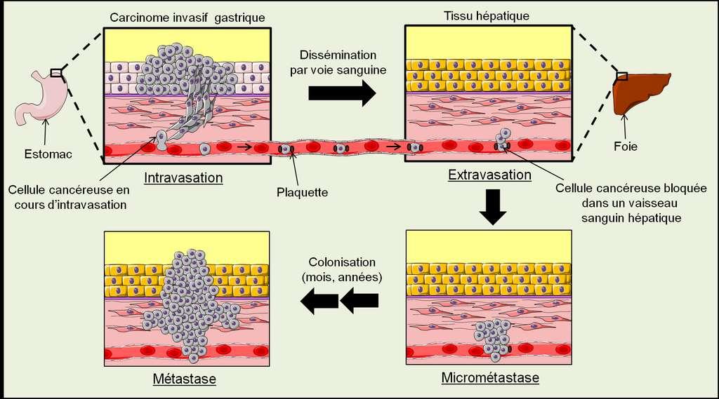 Figure 30. Le processus métastatique. Dans cet exemple, des cellules cancéreuses de l'estomac sont devenues invasives et elles peuvent pénétrer dans la circulation sanguine par intravasation. Dans la circulation sanguine, elles s'entourent de plaquettes et finissent par se bloquer dans un vaisseau sanguin du foie. Elles se mettent à proliférer et rompent le vaisseau sanguin, elles se retrouvent ainsi dans le tissu hépatique : c'est l'extravasation. Leur prolifération est limitée car elles ne sont pas adaptées à leur nouvel environnement, elles ne forment qu'une micrométastase. Si les cellules cancéreuses parviennent à s'adapter à leur nouvel environnement, ce qui peut prendre des années, elles colonisent le nouveau tissu pour former une métastase dans le foie. © Grégory Ségala