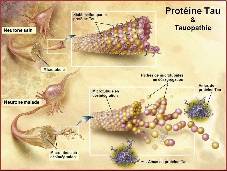 La protéine Tau est présente dans tous les neurones, y compris ceux qui sont sains. Elle stabilise les microtubules, le squelette cellulaire, comme on peut le voir sur le schéma du haut. En revanche, lorsqu'elle est dite pathologique, elle n'assure plus sa fonction et s'accumule dans le neurone, qui finit par mourir. © Zwarck, Wikipédia, cc by sa 2.5