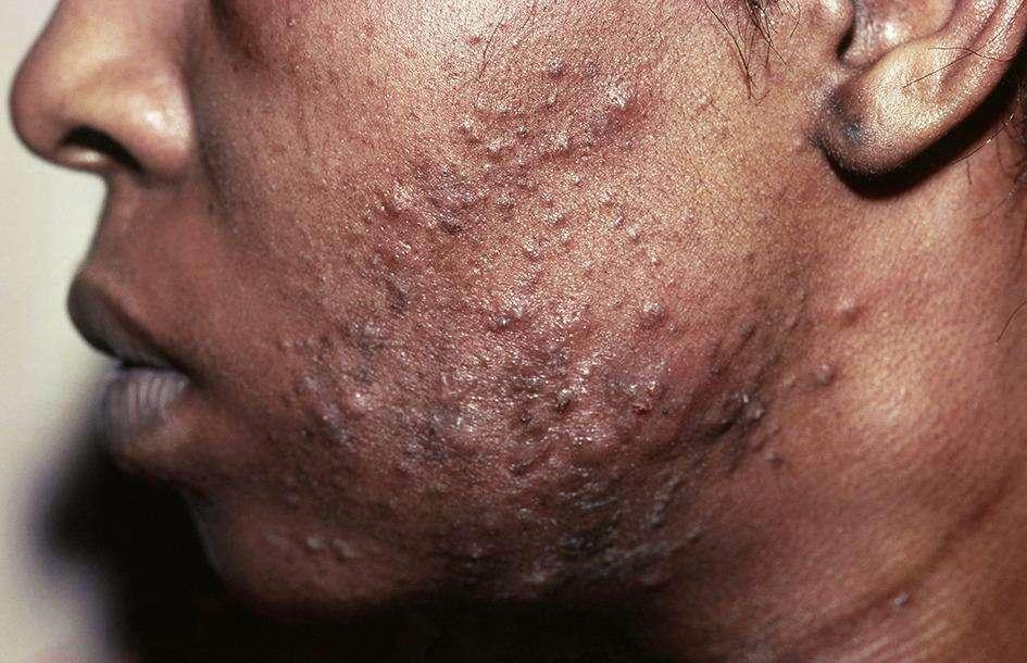 Un cas d'acné lié au masque. © Emily Rudd et Sarah Walsh, BMJ