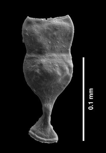 Spécimen malformé de chitinozoaire, un fossile de micro-zooplancton du Silurien du genre Margachitina. © Thijs Vandenbroucke