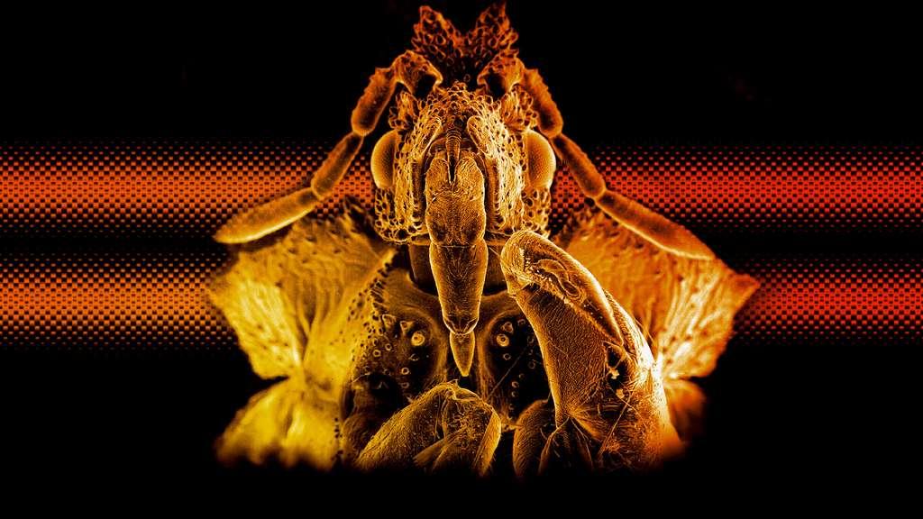 Une redoutable punaise embusquée vue au microscope électronique