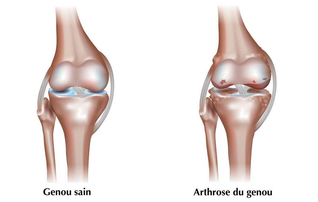 La surface des os qui forment l'articulation du genou est recouverte de cartilage, un tissu élastique qui permet aux os de « glisser » entre eux, d'amortir le choc et de supporter le poids du corps. L'arthrose du genou, qui résulte de l'âge, de contraintes répétées, de l'obésité ou de facteurs génétiques, engendre une dégradation irréversible du cartilage, qui devient alors mince et irrégulier. La friction des os les uns contre les autres engendre des douleurs, une perte de flexibilité et des risques de déformation osseuse. © reineg, Adobe Stock