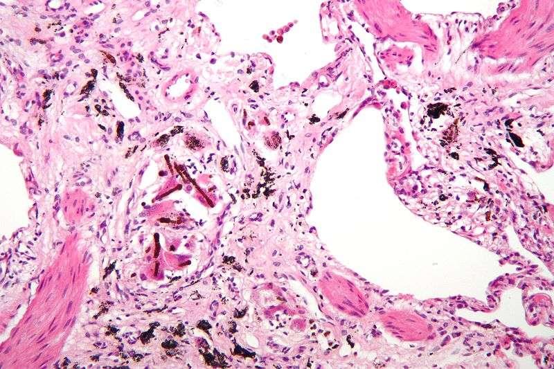 L'asbestose est une maladie due à une exposition à l'amiante. Cette maladie pulmonaire apparaît 10 à 20 ans après les faits et se caractérise par des inclusions (en noir) formées par les fibres d'amiante inhalées mélangées à un métal ferreux. On ne sait pas traiter cette maladie. © Nephron, Wikipédia, cc by sa 3.0