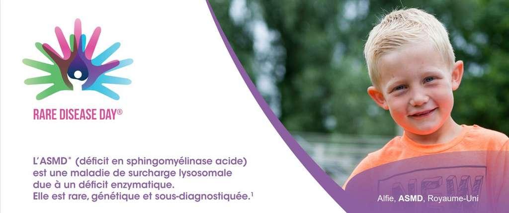 *ASMD : Acid SphingoMyelinase Deficiency. L'ASMD est également connu sous le nom de maladie de Niemann-Pick de type A & B. Source du visuel : Lidove et al. Déficit en sphingomyélinase acide (maladie de Niemann-Pick B) : une étude rétrospective multicentrique de 28 patients adultes. La Revue de Médecine Interne, Vol 38, Issue 5 (2017) p. 291-299