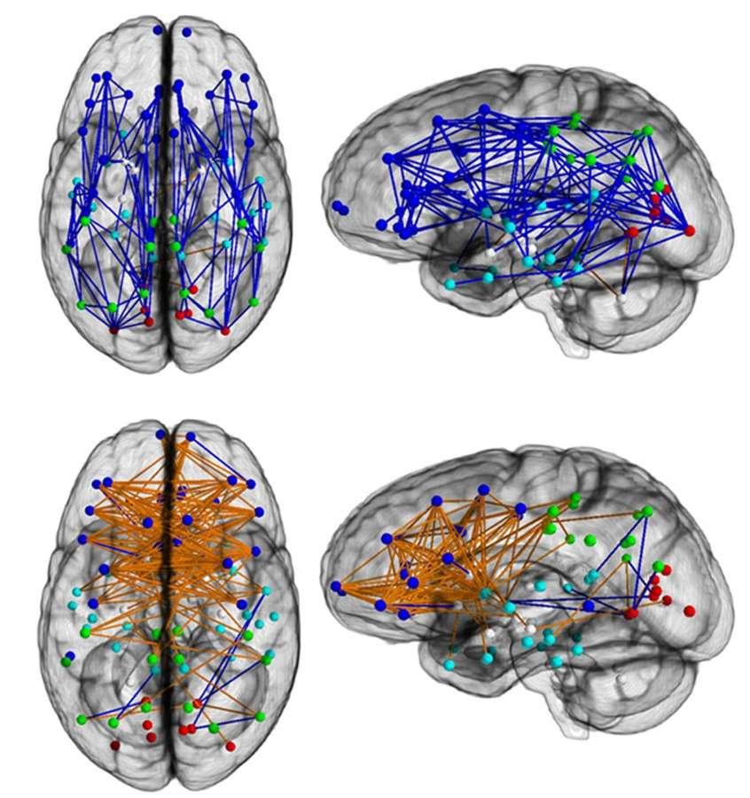 On observe davantage de connexions intrahémisphériques chez les hommes (en haut, en bleu), mais plus de connexions intrerhémisphériques chez les femmes (en bas, en orange). © Ragini Verma et al., université de Pennsylvanie