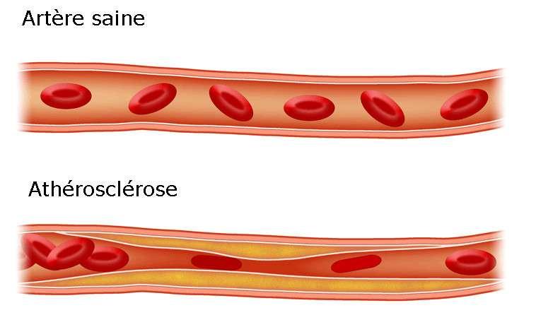L'accumulation de chlolestérol et de triglycérides dans le sang peut conduire à l'athérosclérose. L'athérosclérose se caractérise par le dépôt d'une plaque de lipides sur la paroi des artères. Elle est à l'origine de nombreux problèmes cardiovasculaires. © Adapté de Icewalker cs, Wikimedia Commons, cc by sa 3.0