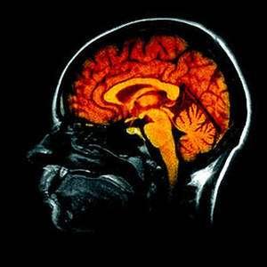 On estime que le cerveau contient un peu plus de 100 milliards de neurones. © DR