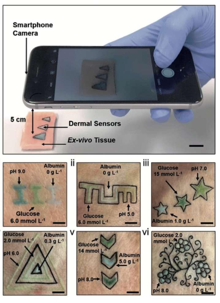 Le smartphone détecte les taux sanguins de métabolites grâce aux couleurs. © Angewandte International Edition Chemie