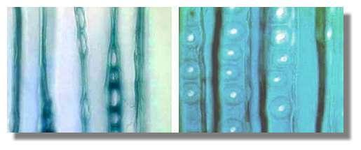 Figure 12. Ponctuations aréolées permettant la communication latérale entre les trachéides en section tangentielle (à gauche) et radiale (à droite). © Photo R. Prat