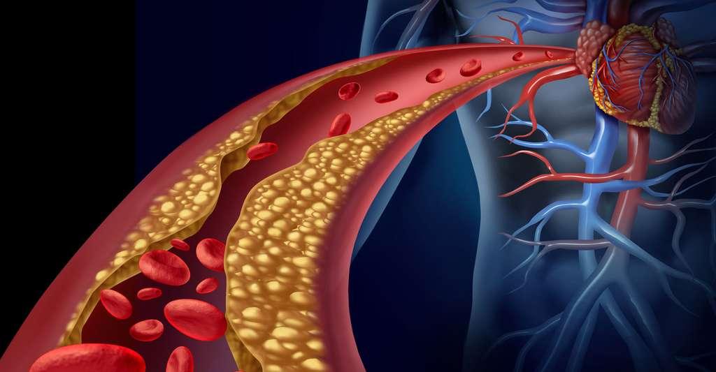 Dépôt d'athérome dans une artère. © Lightspring, Shutterstock