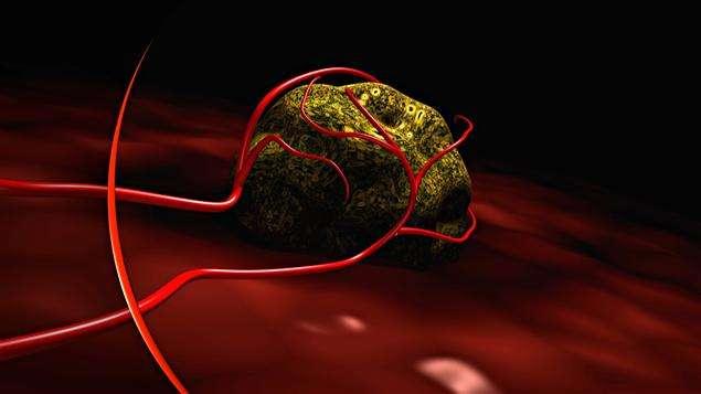 Tous les cancers, bien que différents, répondent aux mêmes mécanismes d'apparition et d'évolution. © DR