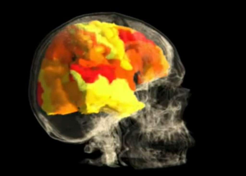 IRM montrant l'activation des zones du cerveau lors d'un orgasme. © Barry R. Komisaruk et al./YouTube