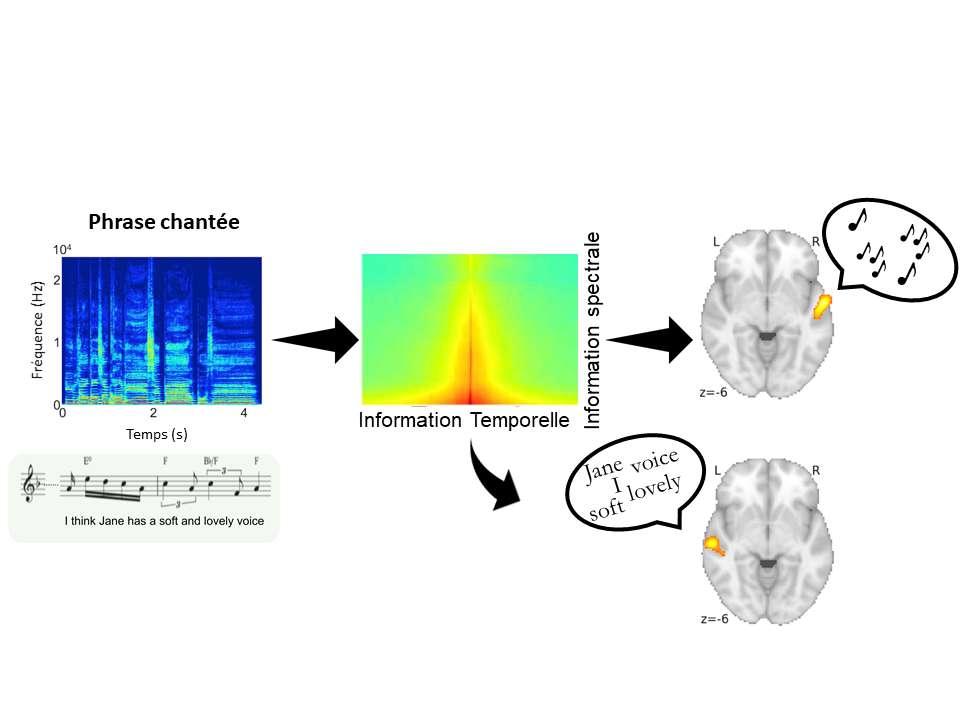 Extrait original de chant a capella (en bas à gauche) et son spectrogramme (au-dessus, en bleu) décomposé en fonction de la quantité d'informations spectrales et temporelles (au centre). Les cortex auditifs droit et gauche du cerveau (côté droit de la figure) décodent respectivement la mélodie et la parole. © Inserm