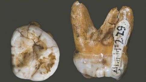 Cette molaire a été retrouvée dans la grotte de Denisova, en Sibérie. Elle aurait appartenu à une petite fille dénisovienne ayant vécu voici 38.500 à 42.000 ans. Les chercheurs ont pu en extraire de l'ADN pour séquencer le génome complet de cette espèce proche d'Homo neanderthalensis. © David Reich et al. 2010, Nature