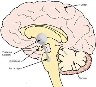 Localisation du locus niger (substance noire) du cerveau. Source : La maladie de Parkinson, site du laboratoire GSK. Crédits photos/illustrations : © Laboratoire GlaxoSmithKline - www.gsk.fr