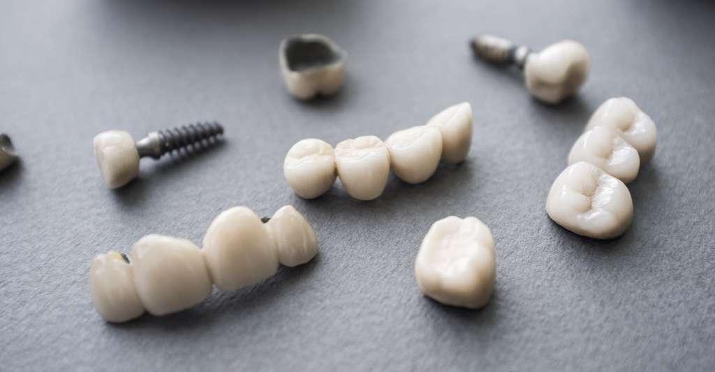 Certaines couronnes dentaires sont faites de céramique. © golubovy, Fotolia