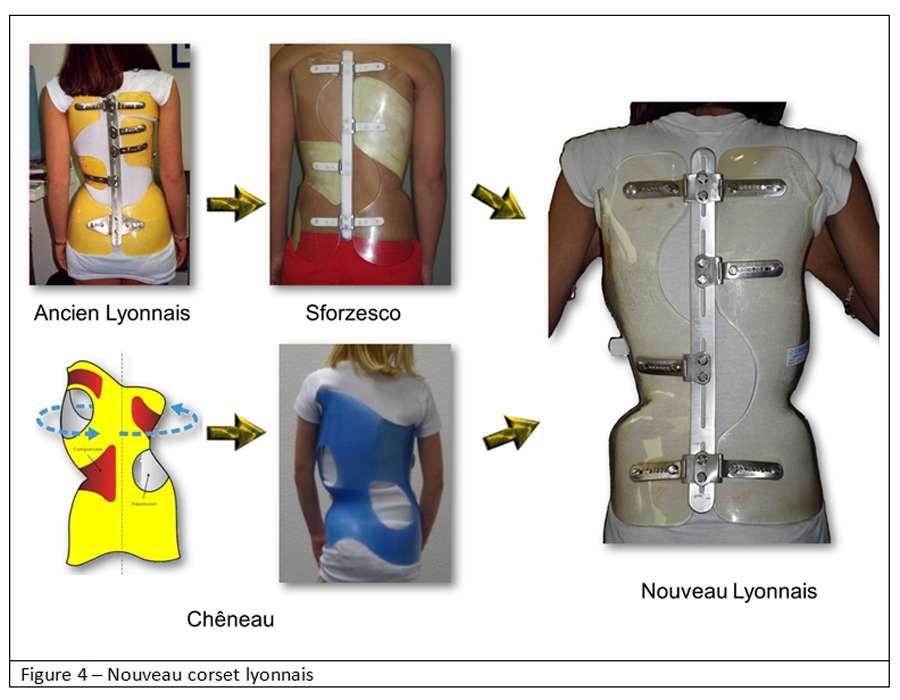 Le nouveau corset lyonnais a fait progresser le traitement de la scoliose. © Docteur Jean Claude de Mauroy - Tous droits réservés/Reproduction interdite