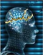 La crise d'épilepsie est due à des décharges anormales de neurones. © DR