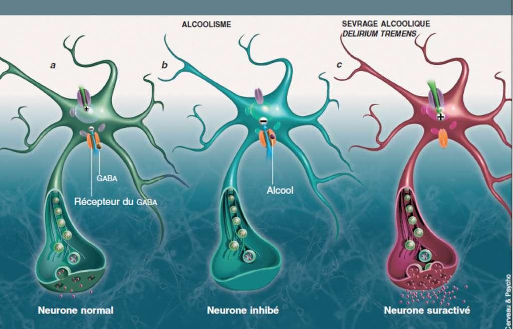 Le récepteur du Gaba (nommé Gaba-A) est une volumineuse molécule (en orange) formant un canal dans la membrane des neurones. Il est présent dans diverses régions cérébrales. Quand il est activé par le Gaba, il s'ouvre et laisse entrer des ions chlore, de sorte que la membrane neuronale est hyperpolarisée (la différence de potentiel de part et d'autre de la membrane est inférieure à celle qui règne à l'état de repos), et il est alors plus difficile d'activer le neurone : ce dernier est inhibé. Dans des conditions normales, les influences excitatrices (engendrées par des neuromédiateurs excitateurs) et inhibitrices (du Gaba) contrôlent l'activité des neurones (a). Au sein de ce récepteur, on trouve un site de fixation de l'alcool, un site de fixation des benzodiazépines ou un autre encore pour les barbituriques. L'alcool imite les effets du Gaba : la prise chronique d'alcool entraîne une désensibilisation du récepteur et une diminution de son activité – comme si le récepteur était en permanence stimulé par du Gaba. Avec le temps, l'inhibition due à l'alcool l'emporte sur l'excitation due aux neurotransmetteurs excitateurs (b). En cas d'arrêt brutal de l'alcool, les influences inhibitrices sur le neurone n'existent plus et, au contraire, les neuromédiateurs excitateurs renforcent une activité déjà trop importante (c). Le neurone est donc suractivé, ce qui favorise les crises d'épilepsie et les manifestations du delirium tremens. Les symptômes de sevrage s'estompent quand la production de Gaba et celle de son récepteur redeviennent normales et compensent la suractivation. © Cerveau & Psycho