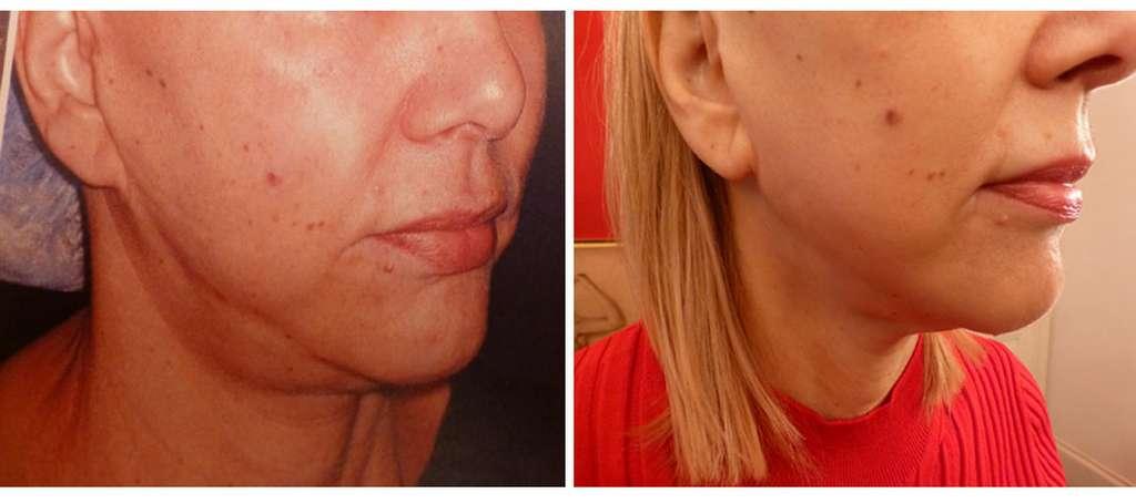 À gauche, profil de visage avant lifting cervico-facial biplan. À droite, profil de visage un an après lifting cervico-facial biplan. © Dr Mitz, tous droits réservés