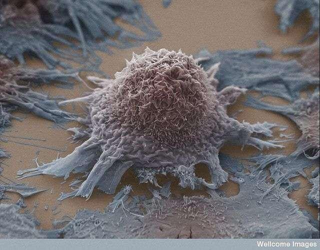 Le cancer est la première cause de mortalité en France. Ici, des cellules de cancer du poumon. © Anne Weston, Wellcome Images, Filckr nc nd 2.0