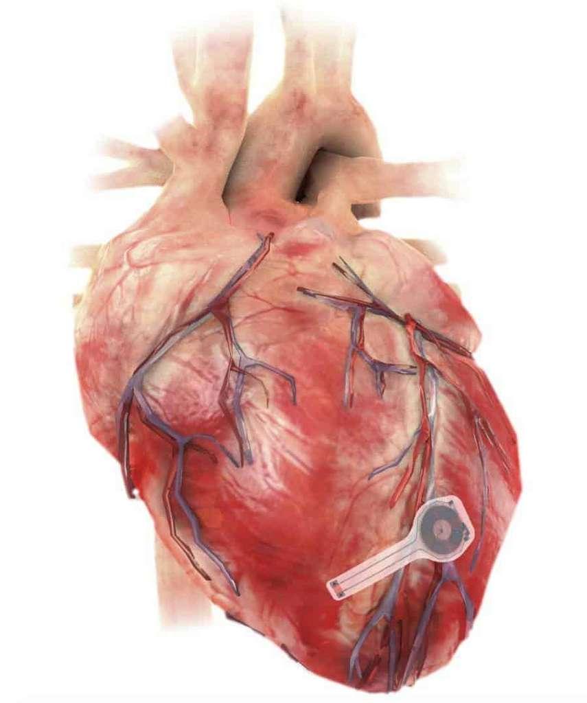 Le pacemaker transitoire placé sur le cœur. © Northwestern University
