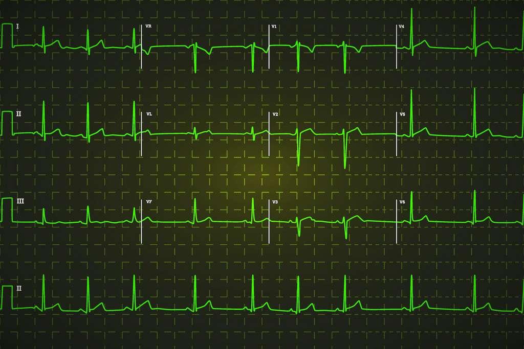 L'acide glycyrrhizique entraîne de graves perturbations du rythme cardiaque. © EvgeniyBobrov, Adobe Stock