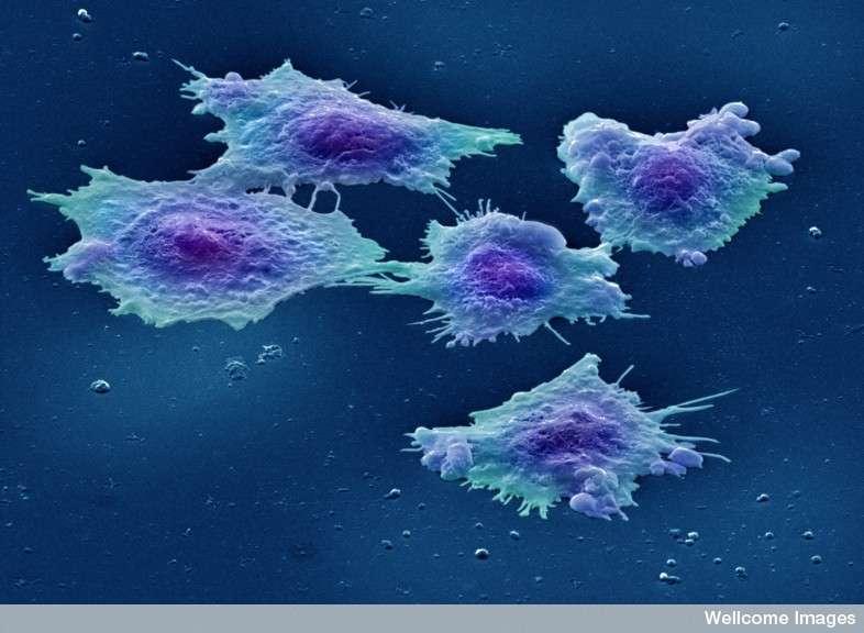 Le cancer colorectal est le troisième cancer le plus fréquent en termes d'incidence et de mortalité en France en 2012. Cette année-là, il a fait 17.722 victimes à l'échelle de l'Hexagone. © Annie Cavanagh, Wellcome Images, cc by nc nd 2.0