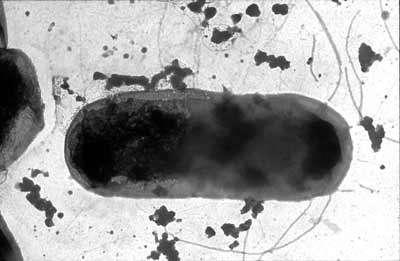Escherichia Coli, entérobactérie - hôte normal du tube digestif - copyright M. Gauthier
