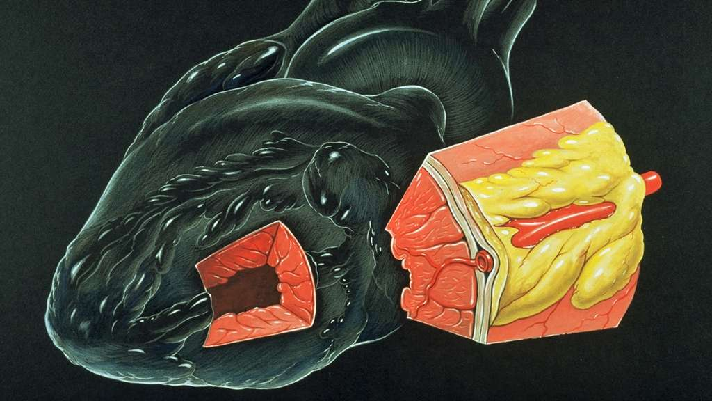 Coupe dans le myocarde. © Patrick J. Lynch, medical illustrator, wikimedia commons, CC 2.5