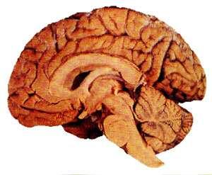 Une coupe du cerveau. © DR