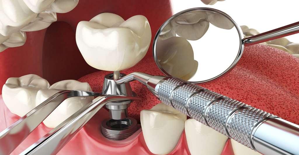 Avantages et contre-indications des implants dentaires. © Maksym Yemelyanov - Fotolia