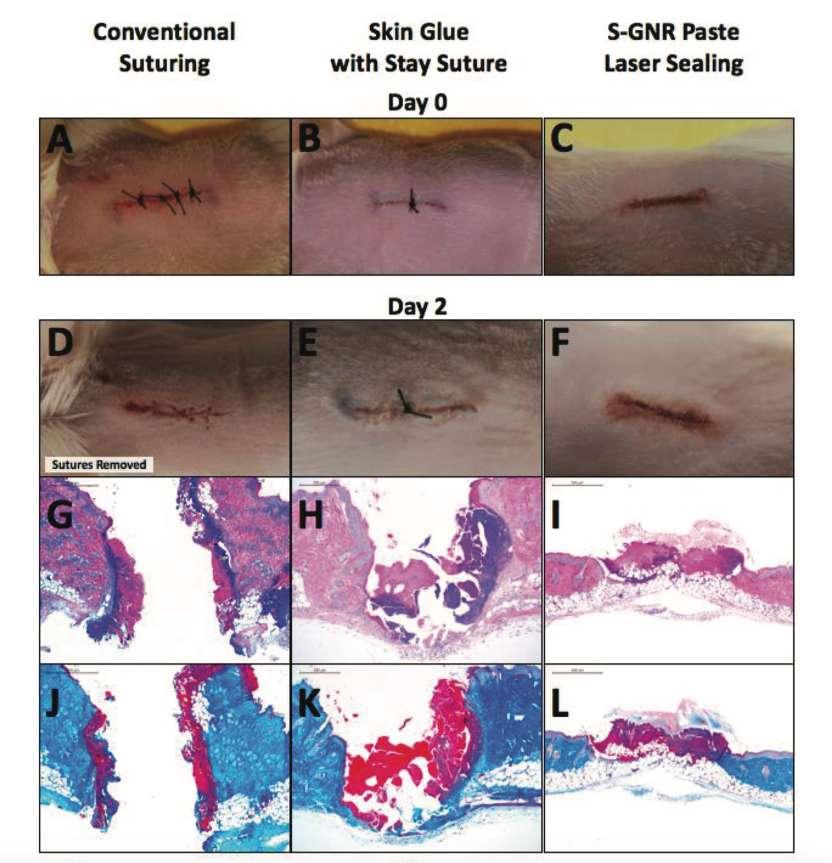 Grâce à l'activation du biopolymère par laser, la cicatrisation est plus rapide et plus profonde qu'avec une suture conventionnelle (A) ou une biocolle classique sans laser (B). © Russell Urie et al, Advanced Functional Materials