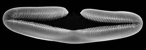 Un spicule placochèle, tapissant les filaments pêcheurs des Euchelipluma et très efficaces dans la capture des proies. Ces spicules ne sont connus que dans une famille littorale non carnivore (Guitarridae), chez laquelle ils n'ont pas de fonction évidente. © Jean Vacelet - Tous droits réservés