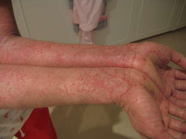 L'eczéma de contact, plus fréquent chez l'adulte, est une réaction allergique cutanée à une substance donnée, comme la méthylisothiazolinone. © Jambula, Wikipédia, DP