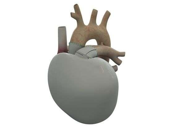 Le cœur artificiel de l'entreprise Carmat, relié aux oreillettes du patient, comporte deux ventricules qui assurent le mouvement du sang grâce à une pompe motorisée. Grâce à une analyse en temps réel, la puissance est régulée en fonction des besoins. © Carmat
