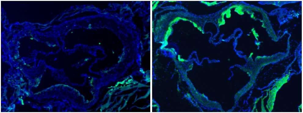 Coloration d'une section d'aorte de souris à l'aide d'anticorps dirigés contre les macrophages. À gauche, une souris à l'alimentation normale, à droite, une souris nourrie avec beaucoup de choline. © Nature
