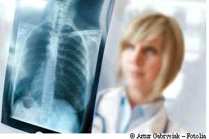 Les thérapies ciblées pourront certainement guérir plus facilement les cancers, comme le cancer du poumon. © Artur Gabrysiak-Fotolia
