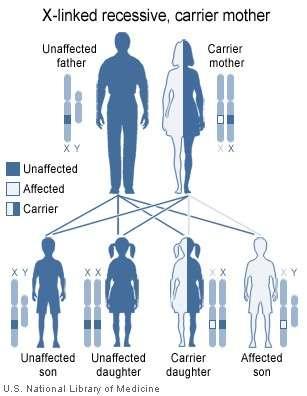 Les maladies génétiques récessives portées par le chromosome X, comme l'hémophilie, sont particulières. Ce schéma explique pourquoi. Les femmes étant dotées de deux chromosomes sexuels X, les risques de déclarer la maladie sont plus faibles, car il suffit d'une bonne version du gène pour être asymptomatique. Un homme en revanche peut recevoir un X malade de sa mère si elle est porteuse (carrier), et comme son père lui a fourni un chromosome Y, le gène du facteur de coagulation défaillant est seul à s'exprimer : il déclare la maladie (affected). © National Institute of Health, Wikipédia, DP