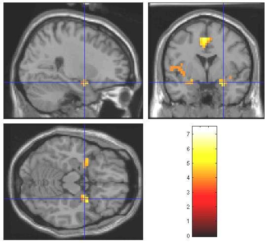 L'imagerie par résonance magnétique fonctionnelle montre que les odeurs activent le cerveau au niveau des deux hémisphères. © J. P. Royet, CNRS
