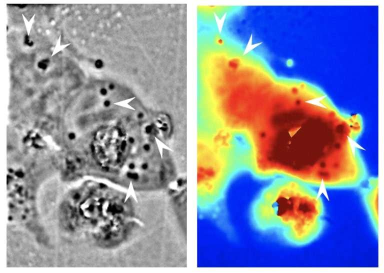 L'image en noir et blanc du microscope à contraste de phase montre – indiquées par des flèches blanches – les nanostructures de réflectine de calmar présentes dans les cellules humaines développées par les chercheurs de l'université de Californie à Irvine (États-Unis). L'image en couleur montre la différence de longueur du trajet de la lumière lorsqu'elle passe par une zone donnée. Le rouge correspond à un trajet long, le bleu à un trajet plus court. © Atouli Chattejee, Université de Californie